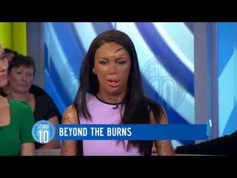 Turia Pitt: Beyond The Burns | Studio 10