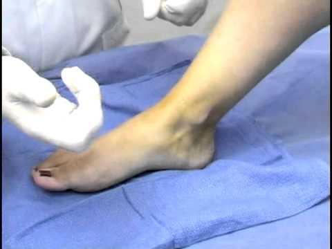 tratamiento quiste sinovial tobillo