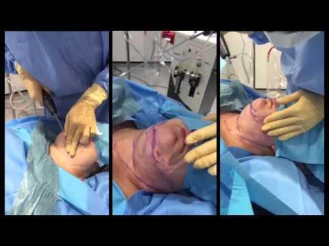 Neck Liposuction   In 1 Minute   London Lipo Institute