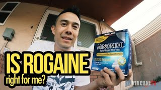 Is Rogaine Right For Me? | Breaking Bald Spots