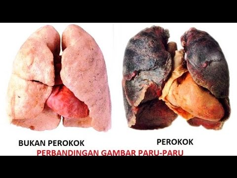 Akibat Rokok - Nasib Paru Paru Orang Yang Merokok - YouTube