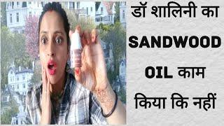 डॉ शालिनी के SANDWOOD OIL में कितना दम है देखते हैं , #drsalini # मेरे साथ इसका experience कैसा रहा?