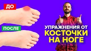 Упражнения от косточки на ноге гимнастика для большого пальца ноги Вальгусная деформация