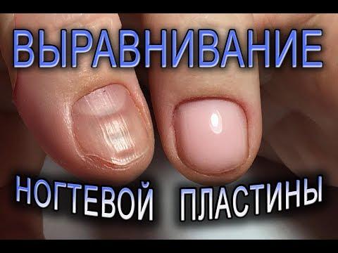 Выравнивание УКРЕПЛЕНИЕ ногтей БАЗОЙ без ОПИЛА✨как исправить КРИВОЙ ноготь.маникюр на КОРОТКИЕ НОГТИ