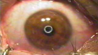 Nystagmus Eyes Under A Lasik Machine - You can't hit a moving target like this!