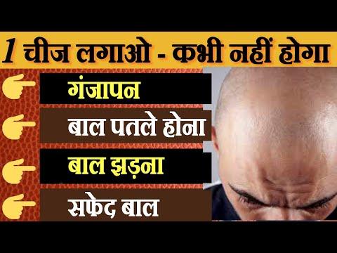 Hair Fall | Home Remedies To Stop Hair Fall | Hair Loss Treatment | Hair Thinning Solutions