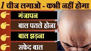 Hair Fall | Home Remedies To Stop Hair Fall | Hair Loss Treatment | Hair Thinning Solutions