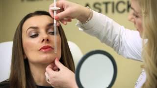 Dermatologie na Klinice YES VISAGE