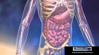 Acute Myeloid Leukemia AML Animation