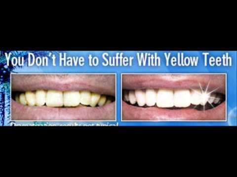 Bella Teeth Whitening Free Trial Best Teeth Whitening Products