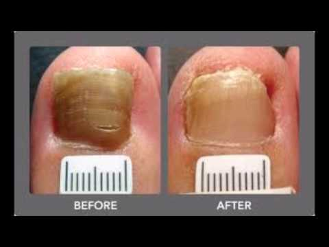 Fungal Nail Infection Laser Treatment Does It Work