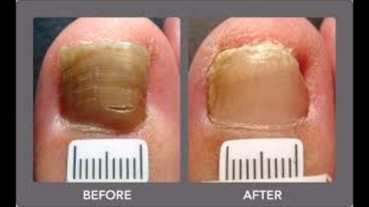 Fungal Nail Infection Laser Treatment Does It Work - YouTube