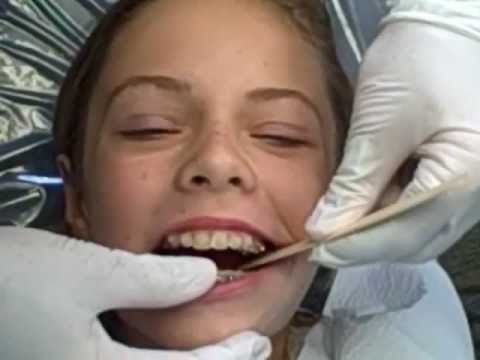 How A Herbst Appliance Is Placed Manley Orthodontics Youtube