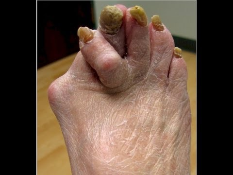 Ugly Feet - Watch if you dare!