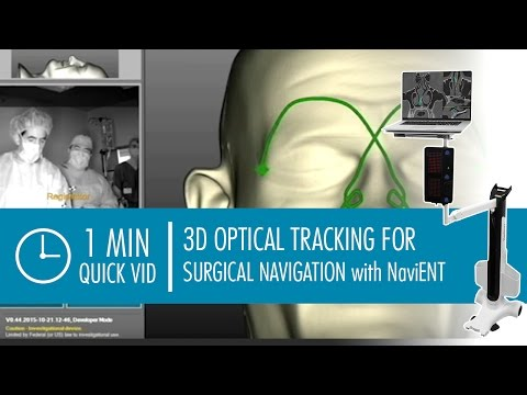 NaviENT - 3D Optical Tracking for Surgical Navigation