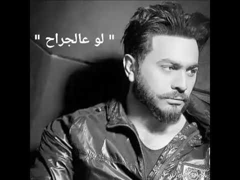 لو عالجراح تامر حسني   law 3algirah Tamer Hosny