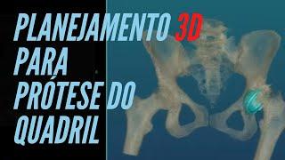 Planejamento digital em 3D para prótese total do quadril em um caso de deformidade complexa.