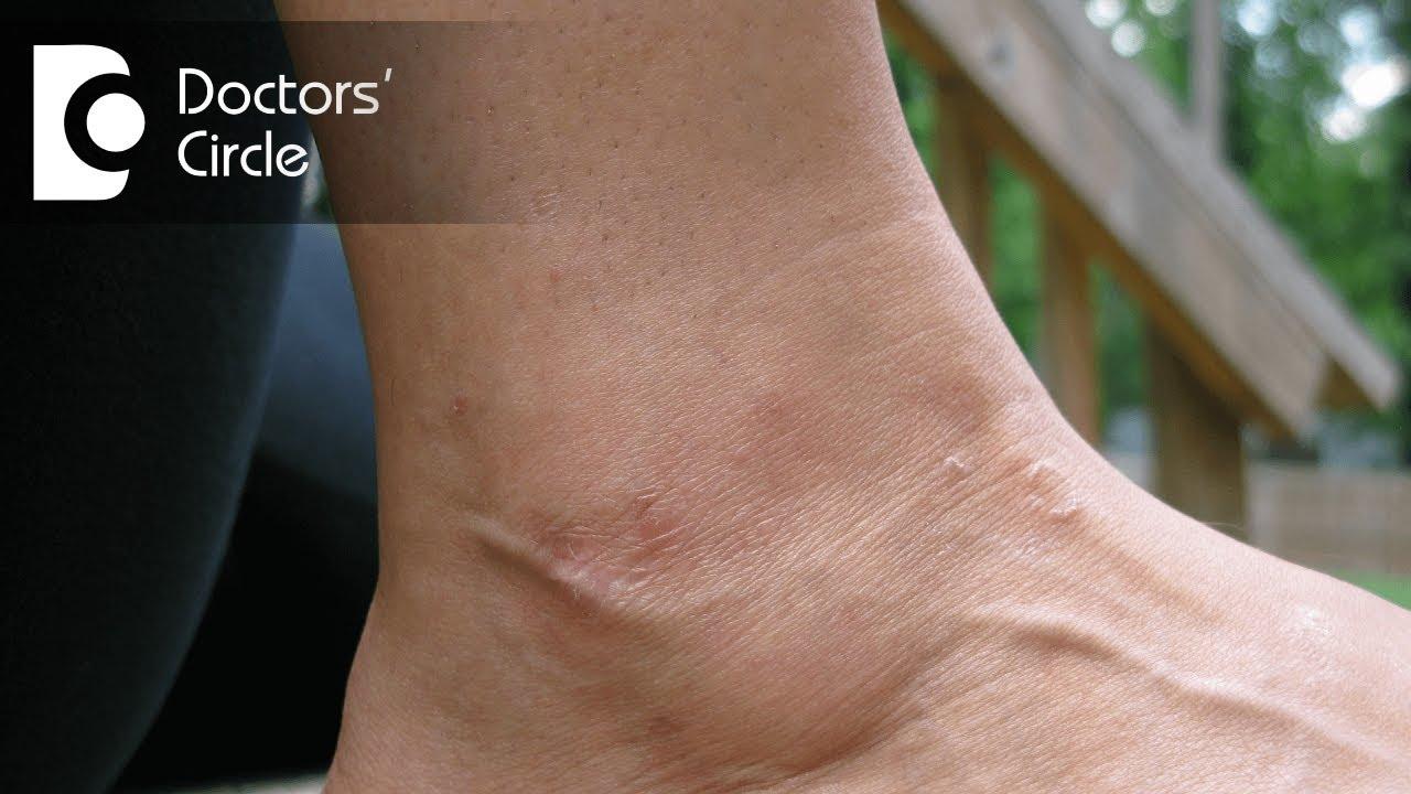 Pikkelysmr pikkelyes lichen hogyan kell kezelni. A bőr betegségei