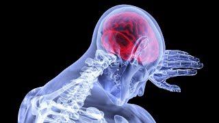 Tumori del cervello