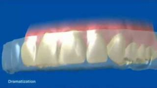 How Crest 3D Whitestrips Work(A video showing exactly how Crest 3D whitestrips work. view the full range of Crest 3D Whitestrips at http://www.teethwhiteningstrips.co.uk., 2010-12-04T05:20:43.000Z)