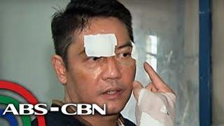 TV Patrol: Ex-mister ni Sunshine Dizon, akusado sa panggugulpi ng negosyante