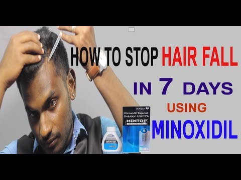 STOP HAIR FALL in 7 days using MINOXIDIL in TAMIL|MENS FASHION TAMIL