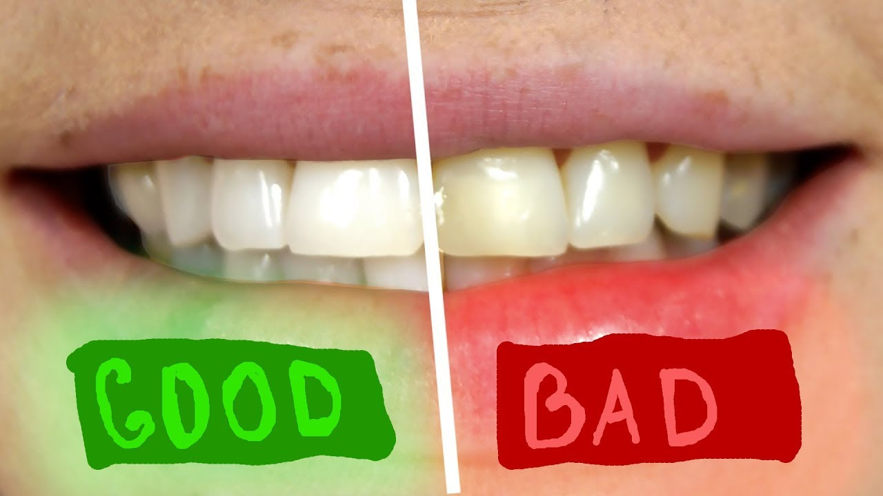 Как отбелить зубы перекисью водорода - отзывы, рецепты 46