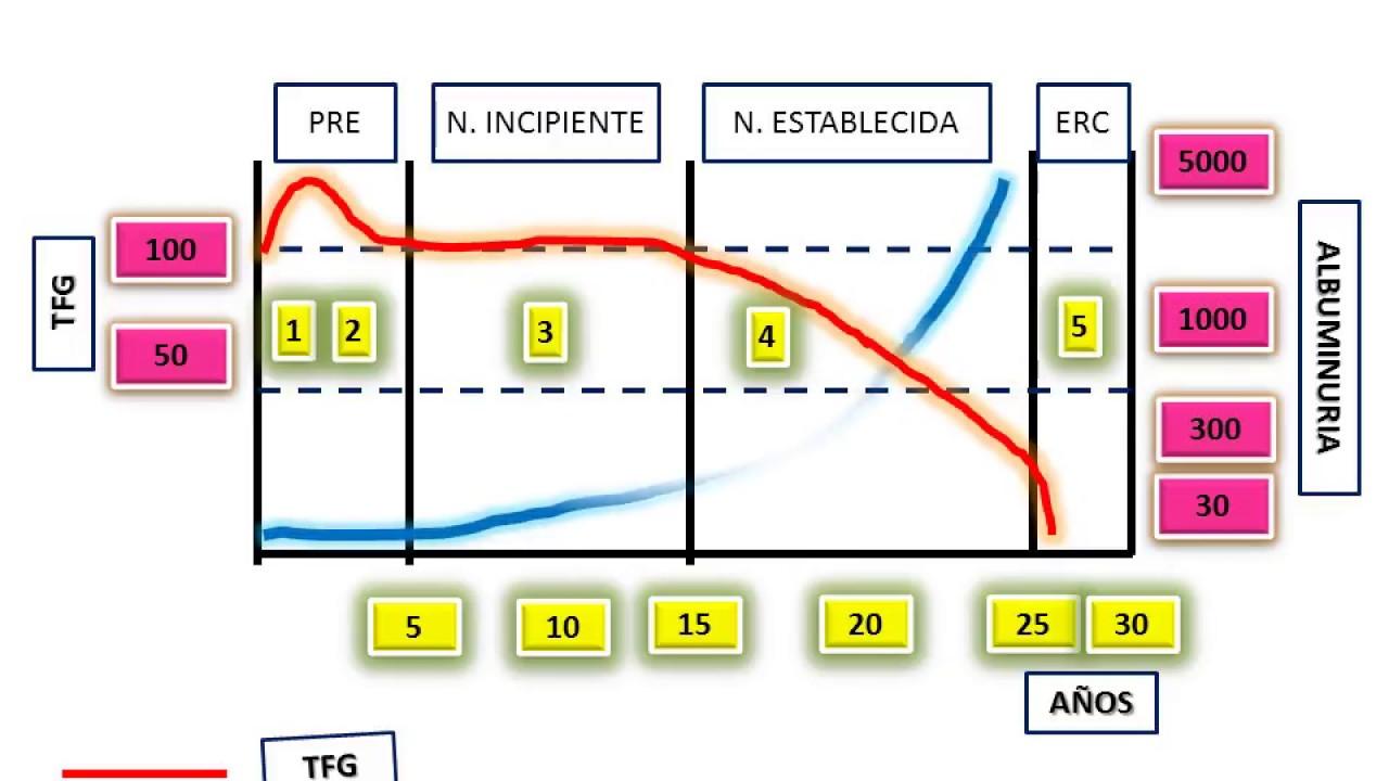 etiología de la neuropatía diabética