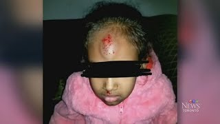 Five-year-old girl pushed off school bus by older kids thumbnail
