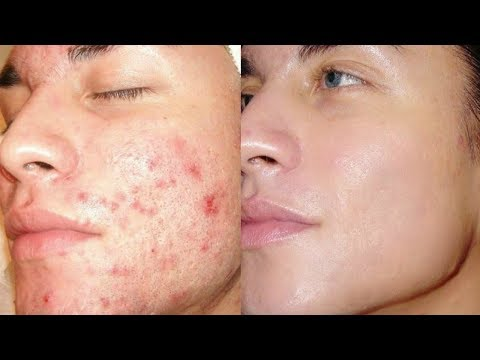 Thumbnail: How To Get Rid of Acne & Pimples In Just 21 Days / Get Clear Skin, Remove Acne, Remove Pimples