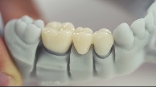 3D Printing in the Dental Laboratory: fabrication of temporary crowns & bridges with Freeprint® temp