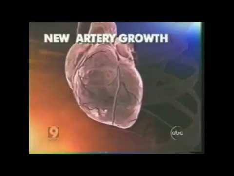 ABC News Clip Zhittya Regenerative Angiogenesis Drug