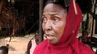 Kwashiorkor - Mangelernährung bei Kindern - Sierra Leone