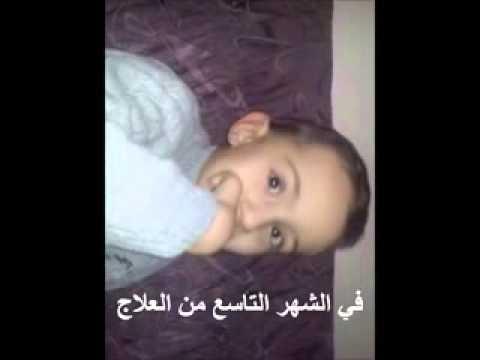 الطفل معتصم علوش والشفاء من مرض التوحد thumbnail