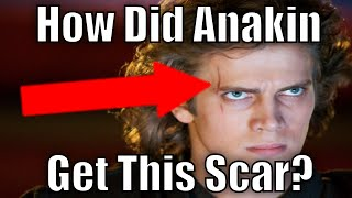 How did Anakin get the scar over his eye?