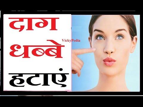 चेहरे के दाग-धब्बे दूर करने का सरल उपाय / HOW TO : GET RID OF ACNE & SCARS - Home Remedy