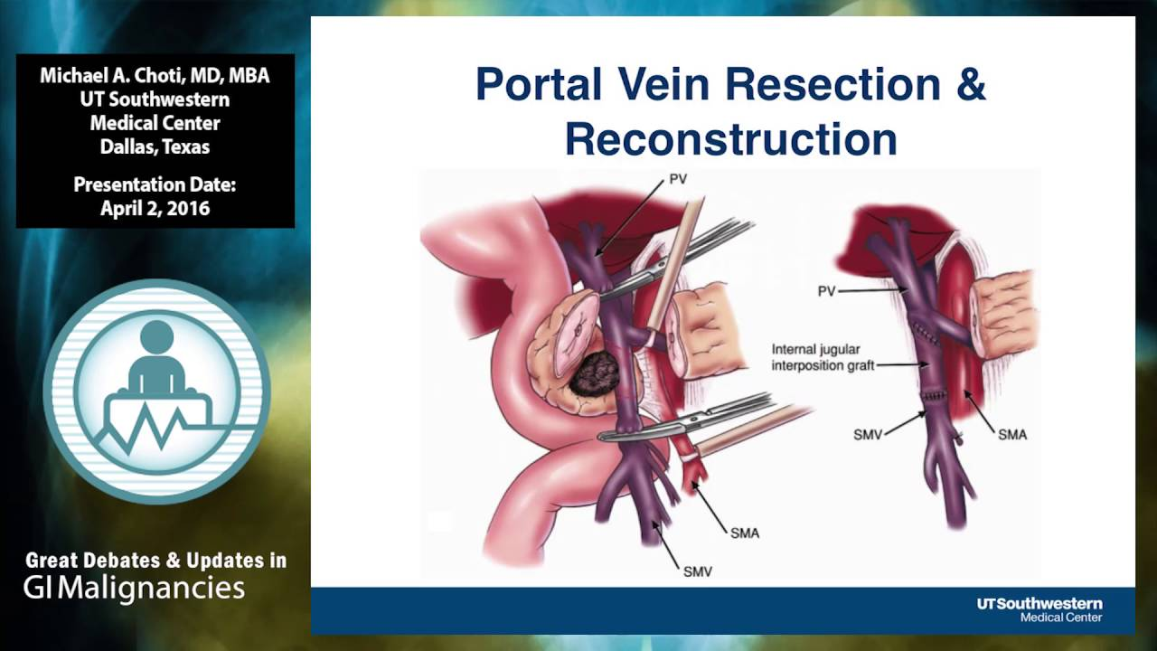 Debate How To Treat Borderline Resectable Pancreatic Cancer