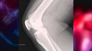 Glucosamine and chondroitin and their effect on joint pain