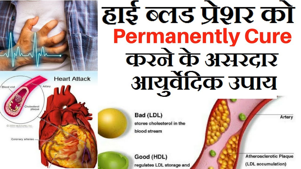 High blood pressure cure in hindi high blood pressure cure in hindi home remedies for high blood pressure nvjuhfo Image collections