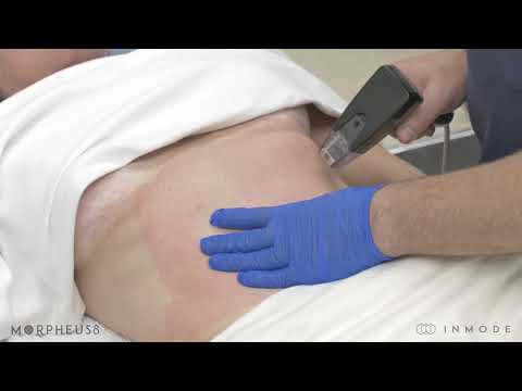 Morpheus8 Full Abdominal Treatment
