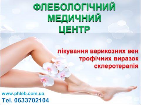 Лечение вен на ногах в Москве: цены на лечение болезни вен