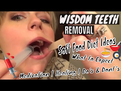 WISDOM TEETH REMOVAL VLOG | WHAT TO EXPECT | FOOD IDEAS