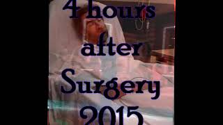 Me after surgery.