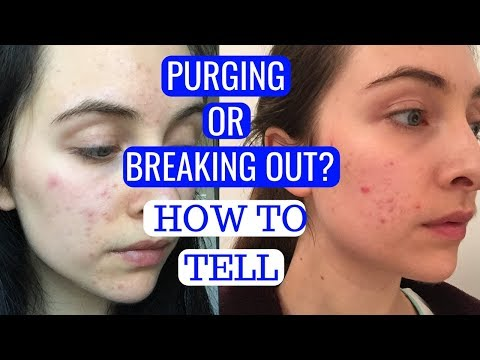 AM I PURGING OR BREAKING OUT? | How To Tell - YouTube