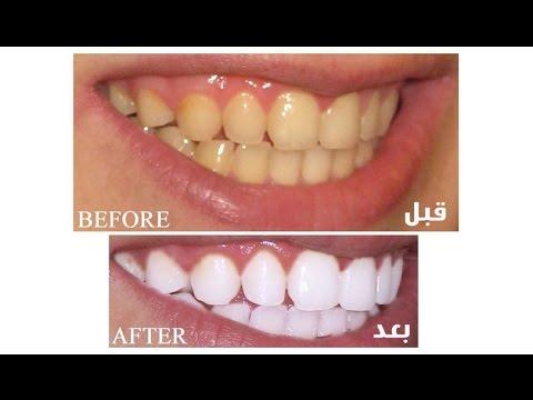 نتيجة بحث الصور عن طريقه لتلميع الاسنان