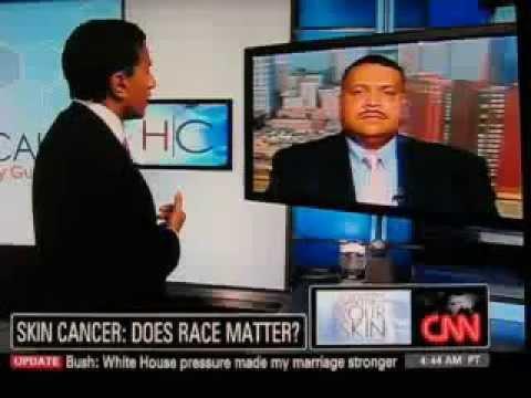 CNN Dr. Sanjay Gupta  Sun Protection