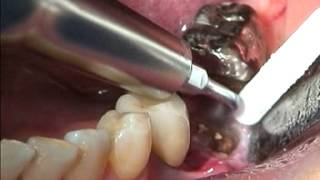 MOLAR FRACTURED ROOT EXTRACTION -SATELEC / APOSTOLIDES DENTAL