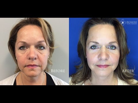 Dr. Wornom: Post Op - Neck Lift & Eyelid Lift with Fat Grafting