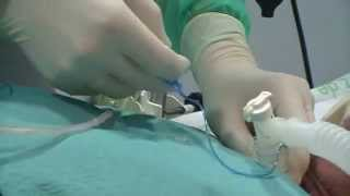 Intercambiador de canula de Traqueostomia (Tracheostomy tube exchanger).