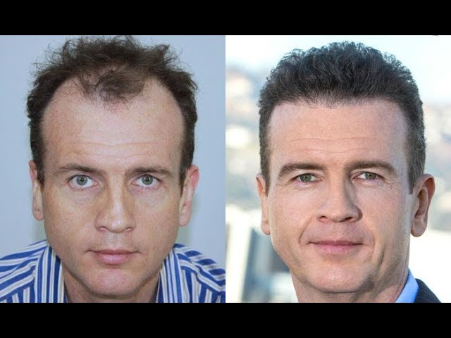 Who should perform a hair transplant in Los Angeles?